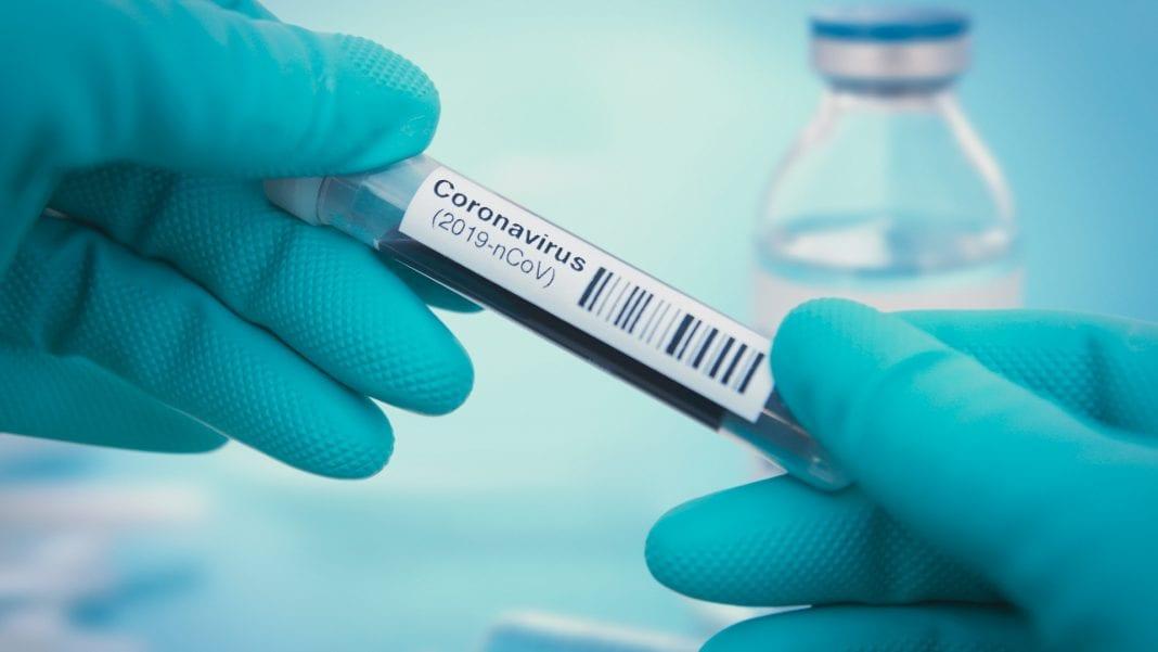 Javni razpis za izbiro raziskovalnih projektov Ciljnega raziskovalnega programa »CRP COVID-19« v letu 2020; rok za prijavo 28. 07. 2020